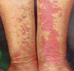 La crema idratante per il bimbo a dermatite atopic